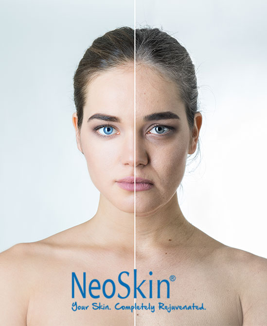 NeoSkin by Aerolase is the perfect anti-aging solution for all ages and all skin types who either want to keep their skin clear and youthful or for those that want to turn back the clock and regain a youthful complexion.